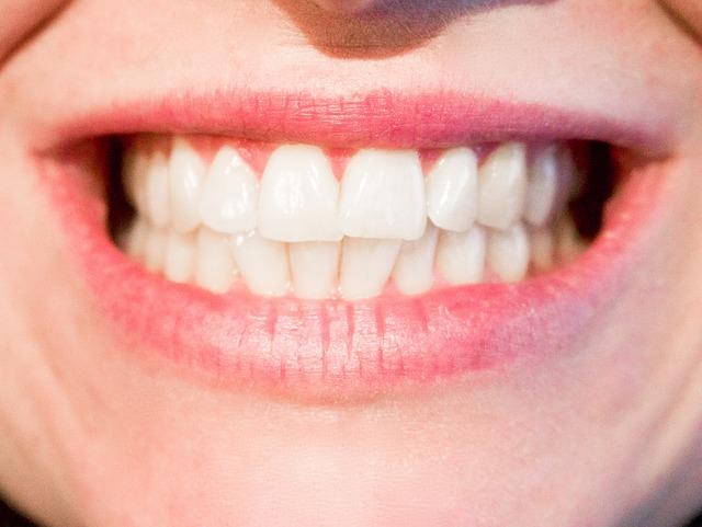 איך להלבין את השיניים בבית